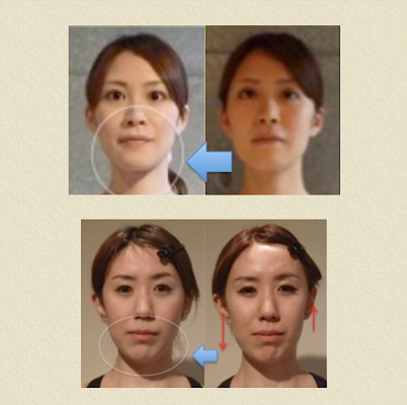 小顔矯正 効果 7