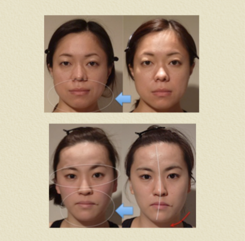 小顔矯正 効果 5