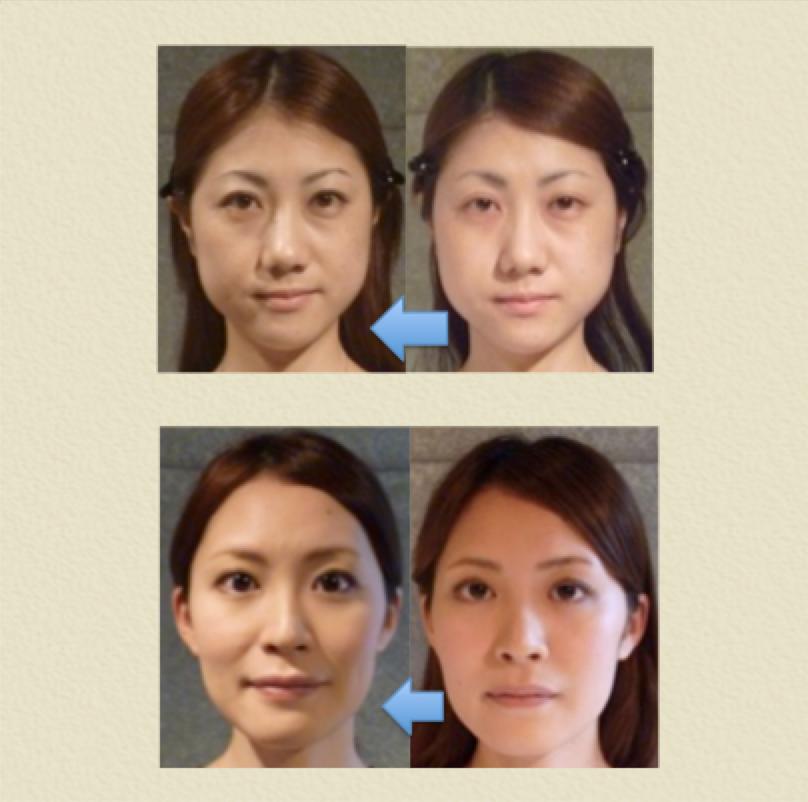 小顔矯正 効果 4