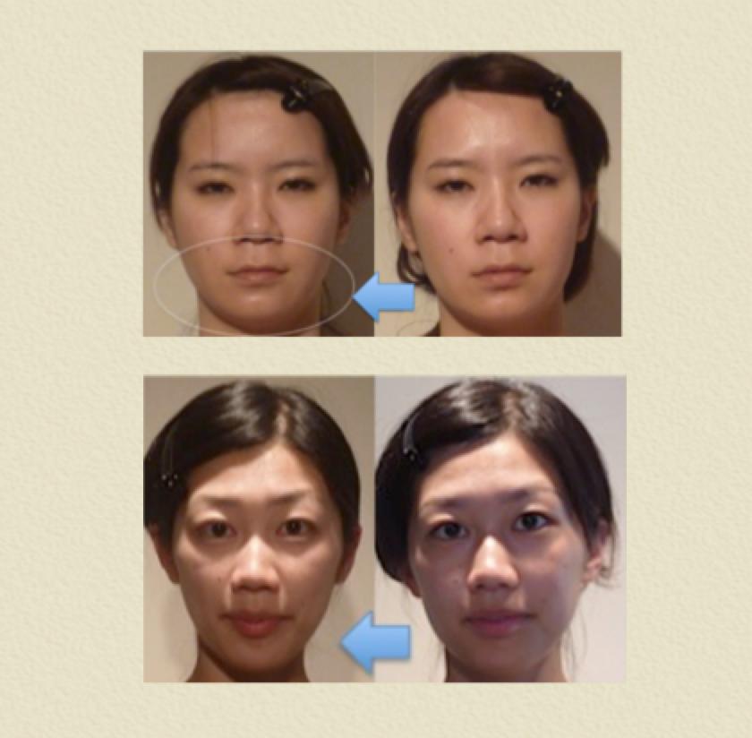 小顔矯正効果2