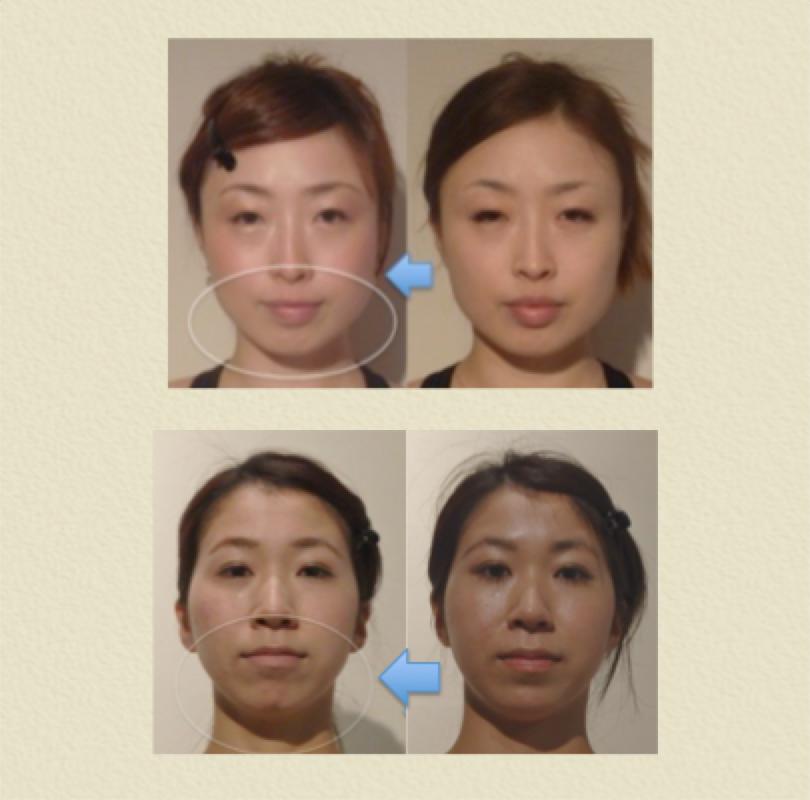 小顔矯正 効果 6