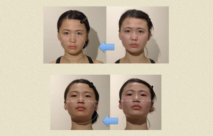 小顔矯正 ビフォーアフター 施術前後 美容整体
