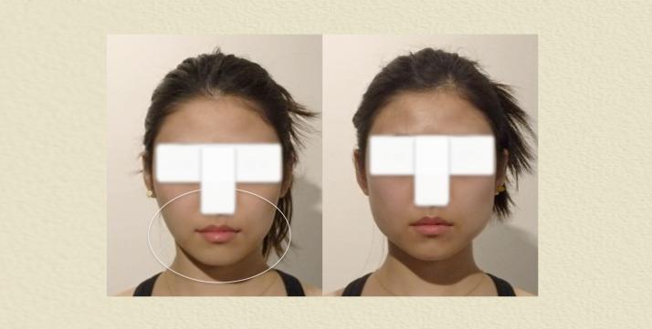 小顔矯正 スタイルアップ 美容整体 ビフォーアフター 施術後