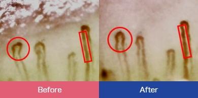 毛細血管の変化