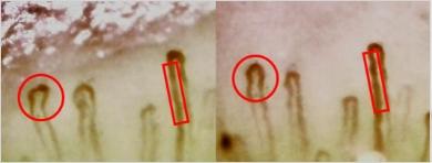 ※毛細血管の変化