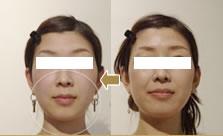 バランスを整えてから小顔矯正を行った変化の一例